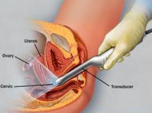 Vaginal Probe Sonogram